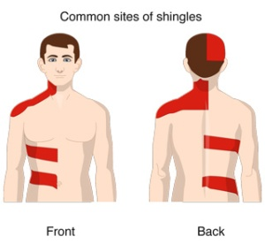 shingles_rash_default